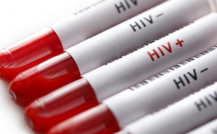 Sağlık bakanlığından AIDS açıklaması, Ukrayna'da kaç hasta var