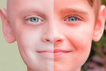 Ukrayna'dan ürküten veriler, çocuklar arasında kanser vakaları 5 yılda yüzde 13 arttı